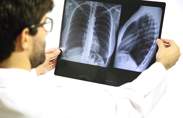 UnB Notícias - UnB desenvolve sistema para análise de raio-x com  inteligência artificial